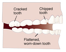 effects of teeth grinding cracked and chipped teeth flat worn down teeth